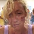 4 juillet. Claridge, Maryland, USA. Petite station balnéaire populaire de Chesapeake Bay. Un lac, une étrange bactérie et des morts à la pelle recouverts de furoncles purulents et autres morsures...
